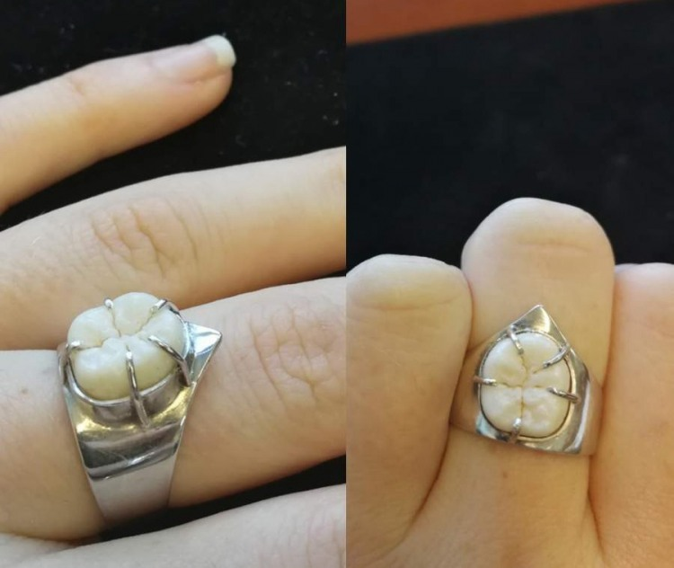 Фото прикол  про кольцо и зубы